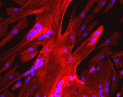 inserm 55723proteinemoyen