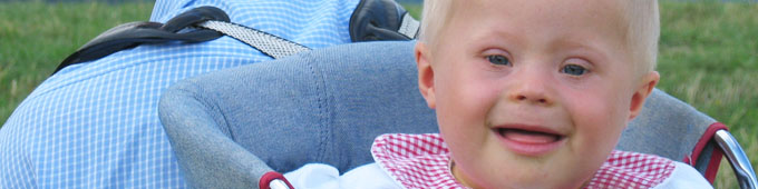 Bébé porteur de trisomie 21