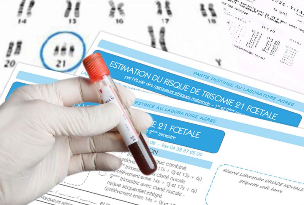 depistage sanguin de la trisomie 21