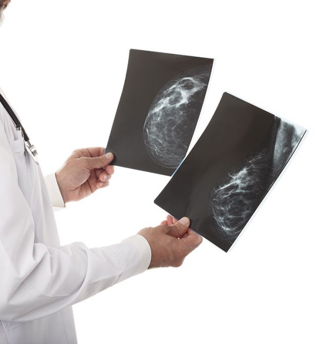 doctor-with-breast-xray-SNCQ2HZ